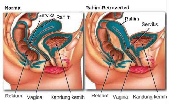 Hinten geknickte gebärmutter nach Gebärmutter nach